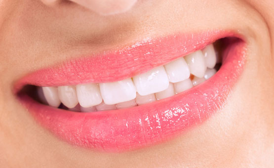 All About Teeth-whitening Methods